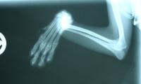 Интервью с травматологом-ортопедом Юрисом Юконисом