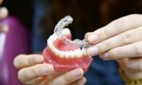Zobu taisnošana bez breketēm - elaineri