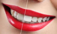 Teeth whitening in the dental office