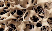 """Veselības centrā """"Dziedniecība"""" - bezmaksas osteodensitometrijas izmeklējumi"""